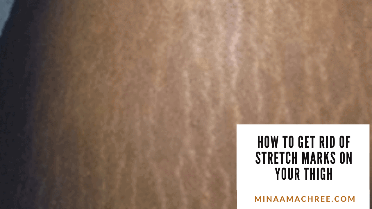How To Get Rid Of Stretch Marks On Your Thigh